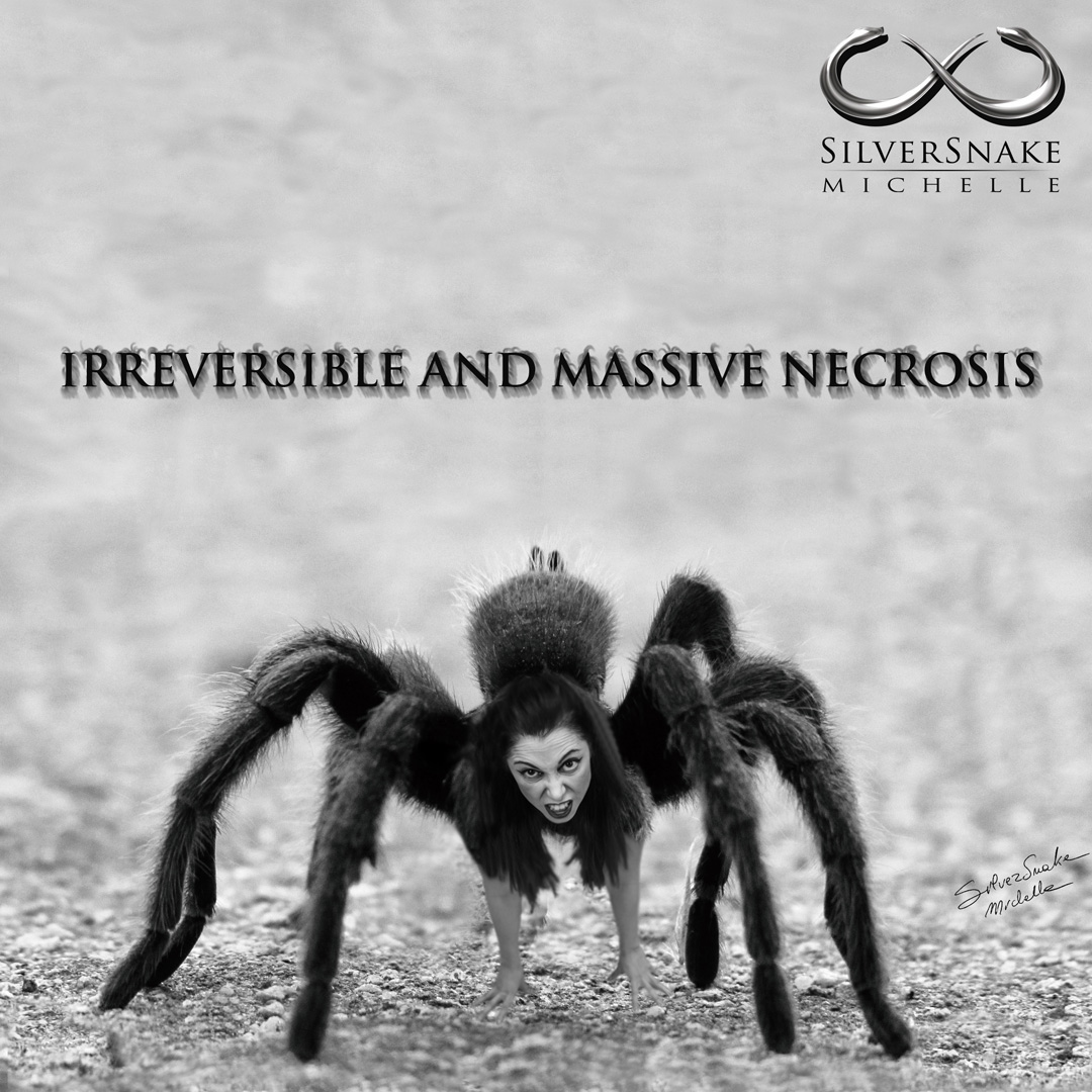 Silversnake Michelle Irreversible And Massive Necrosis
